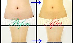 痩身施術3